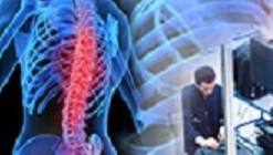 บริษัท สงขลา ไบโอแมส จำกัด การยศาสตร์และการปรับปรุงสภาพการทำงาน